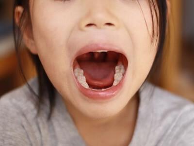 あいうべ体操の口元画像
